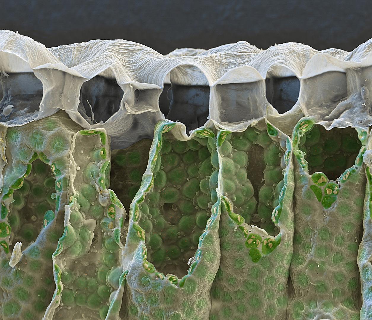 Chloroplasten im Schwammparenchym 1000:1