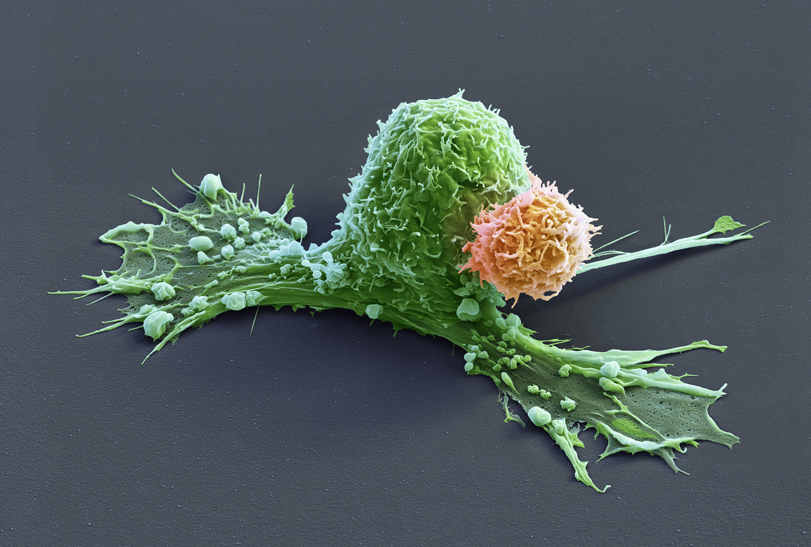 Mammakarzinom-Zellen mit CAR-Zellen, 3600:1