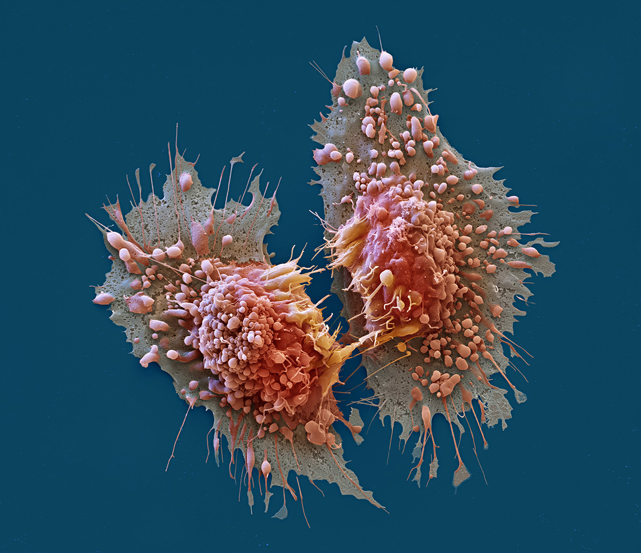 Adenokarzinom-Zellen nach der Teilung, 3500:1