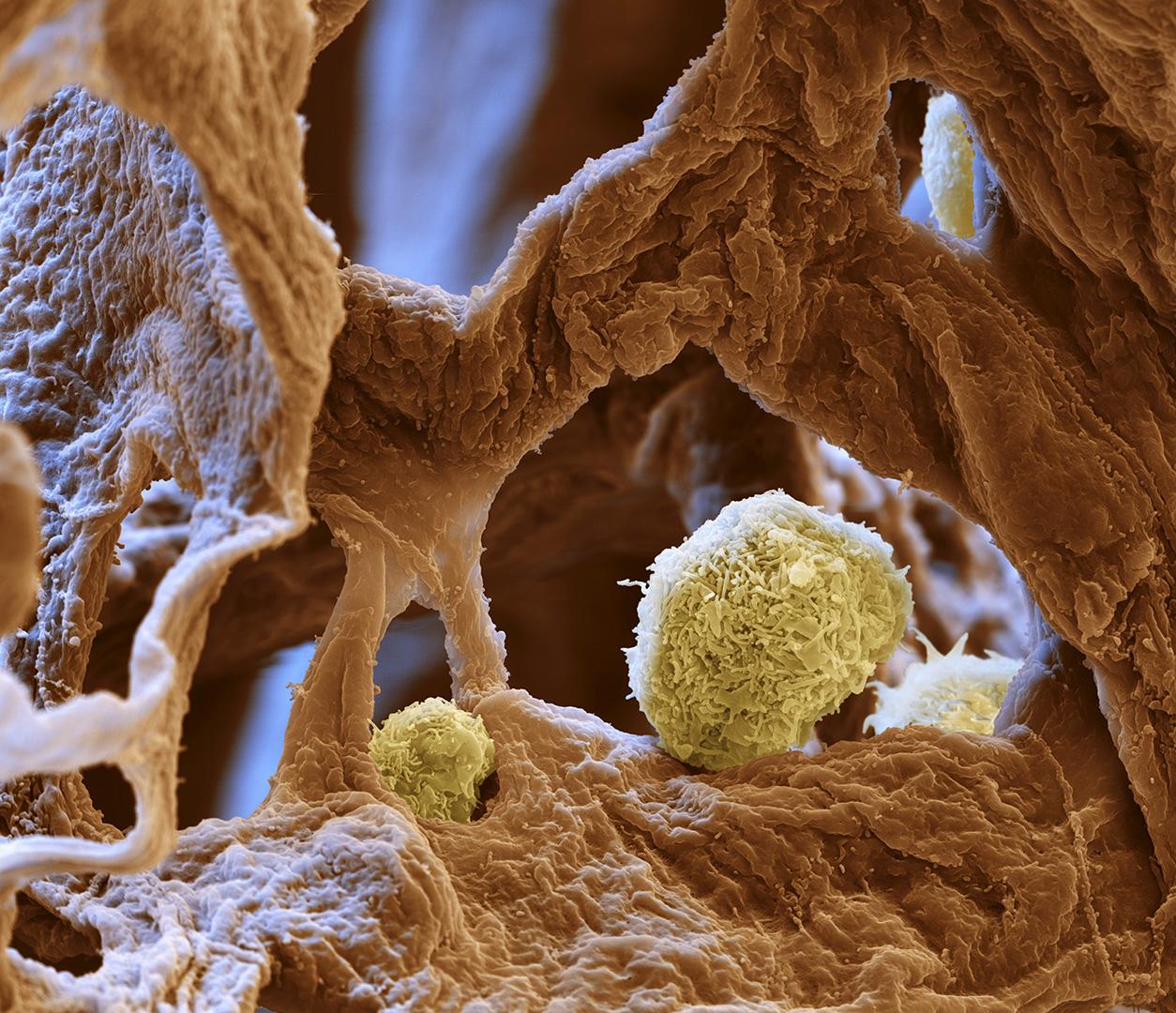 Alveolarmacrophagen in den Lungenbläschen 4500:1