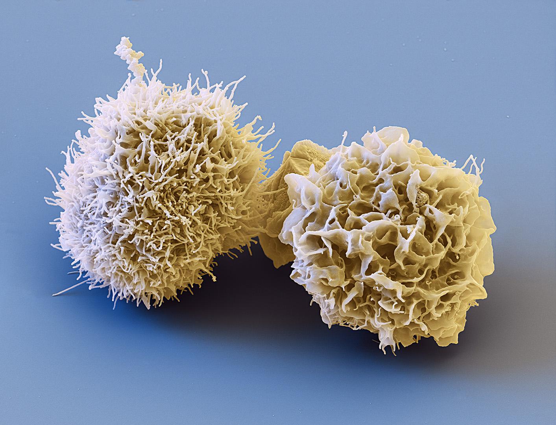 Dendritische Zellen, 5000:1