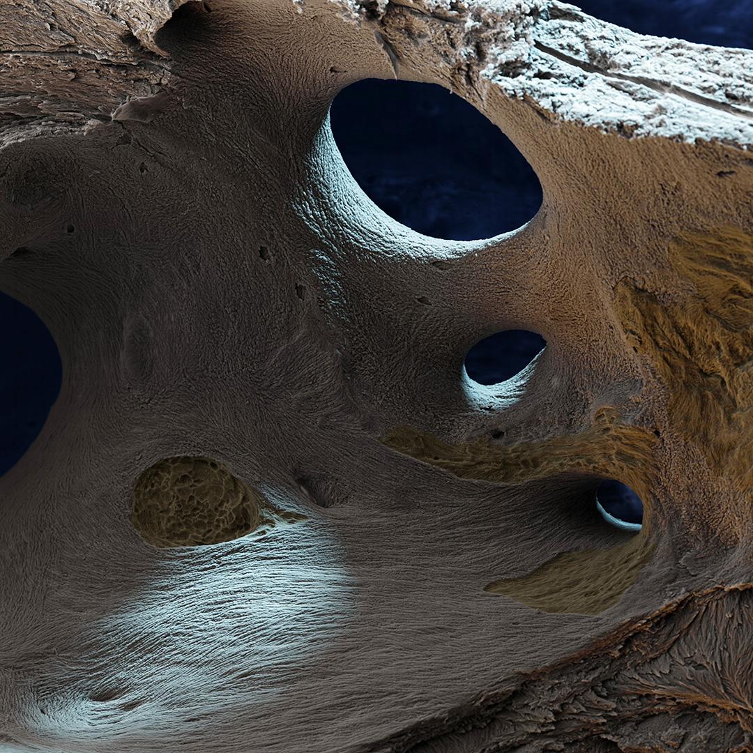 Knochen geätzt 210×1
