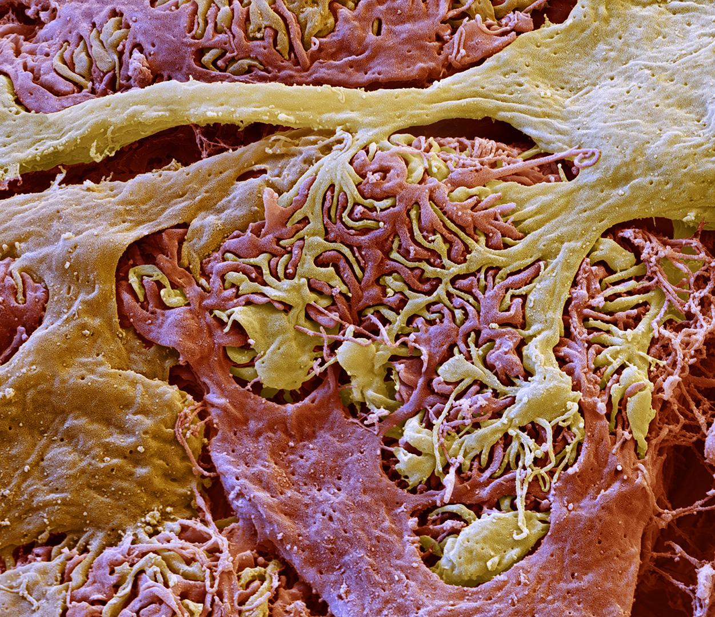 Niere, Glomerulus, 8000:1